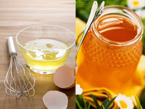 cách trị nám bằng mật ong rừng và lòng trắng trứng gà